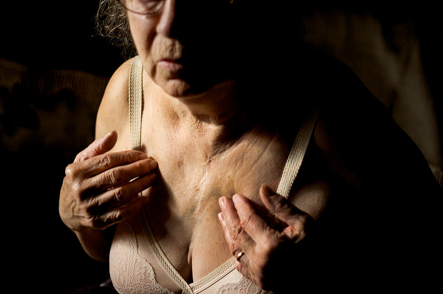 Female Breast Cancer Victim