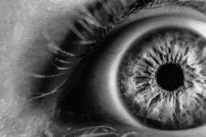 Rare Cancer of the Eye